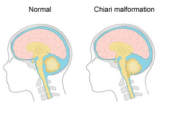 Chiari Malformation 1